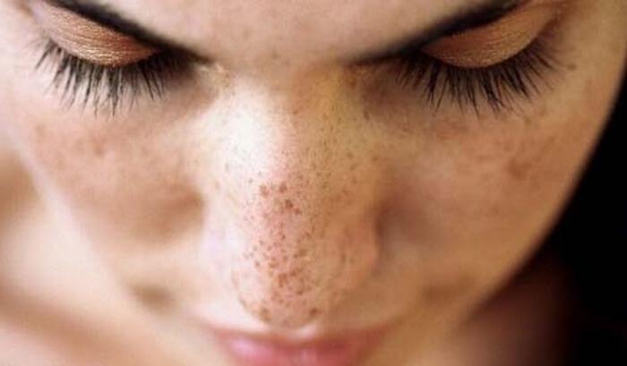 Macchie scure della pelle