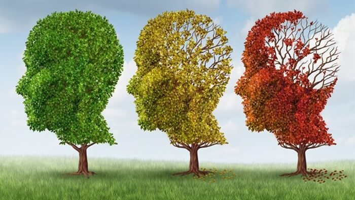 Malattia-di-Alzheimer