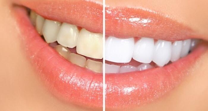 Sbiancare i denti naturalmente