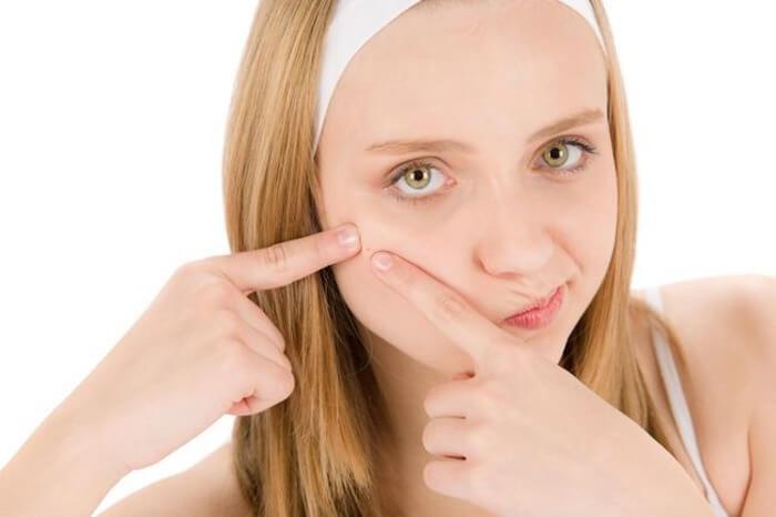 Acne cause sintomi e rimedi