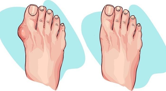 borsite piede rimedi naturali
