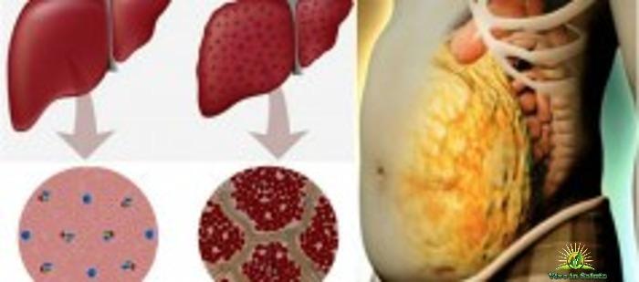 Eliminazione delle tossine dal fegato