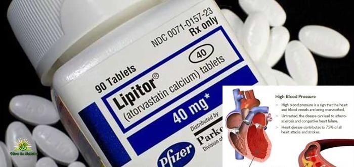 Le statine per abbassare colesterolo