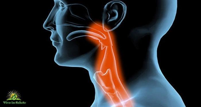 Mal di gola e tonsillite