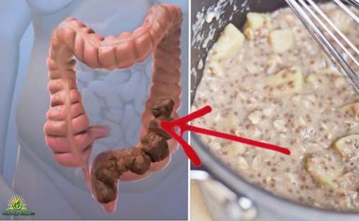 Rimedio naturale per pulire il colon