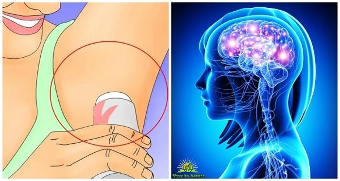 Rimuovere l'alluminio dal cervello