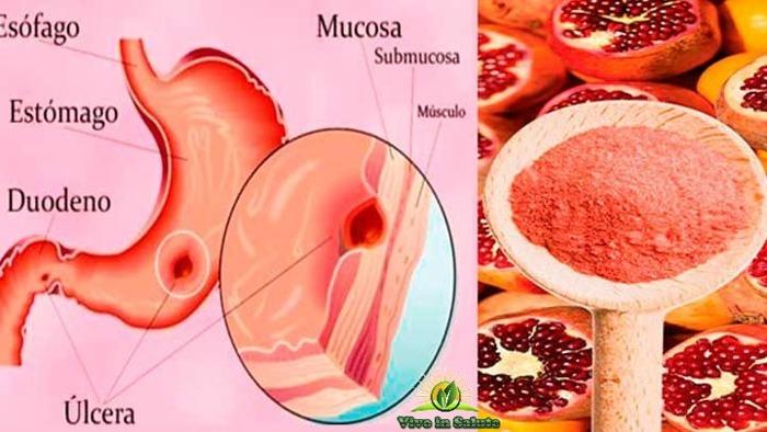 Ulcere dello stomaco