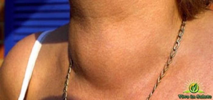 Cosa distrugge la tiroide