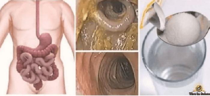 Pulizia del veleno che abbiamo nel colon