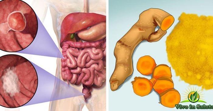 La psoriasi di trattamento che può esser mangiata