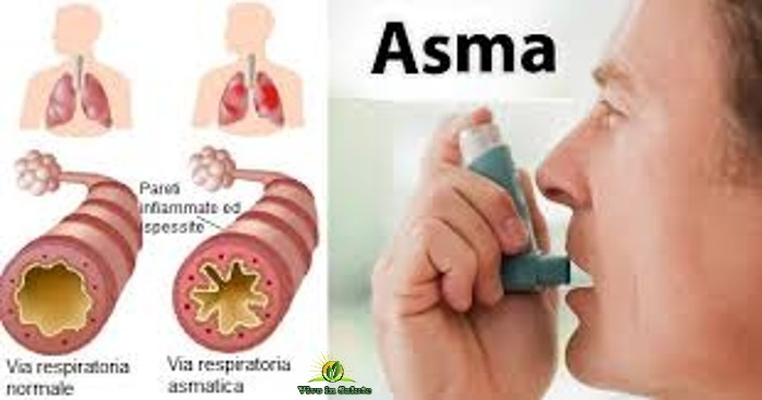 Guarire dall'asma con rimedi naturali e alimentazione
