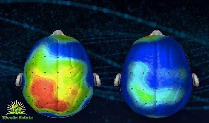 I neuroscienziati scoprono una canzone che riduce l'ansia e stress