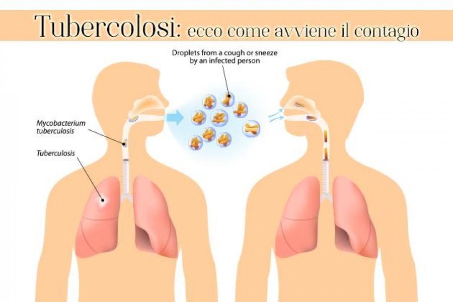 La tubercolosi
