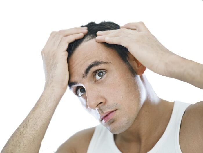 Caduta-capelli-uomo