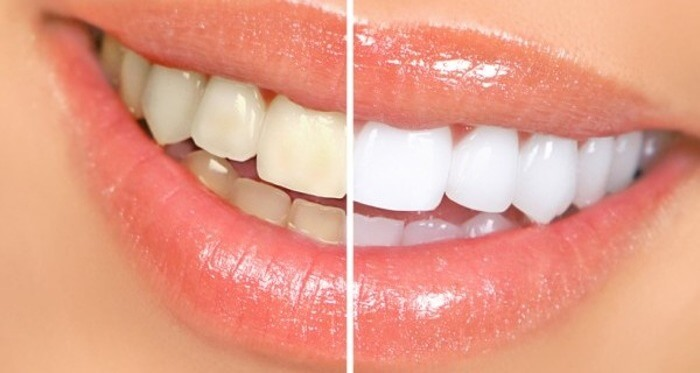 Sbiancare-i-denti-naturalmente