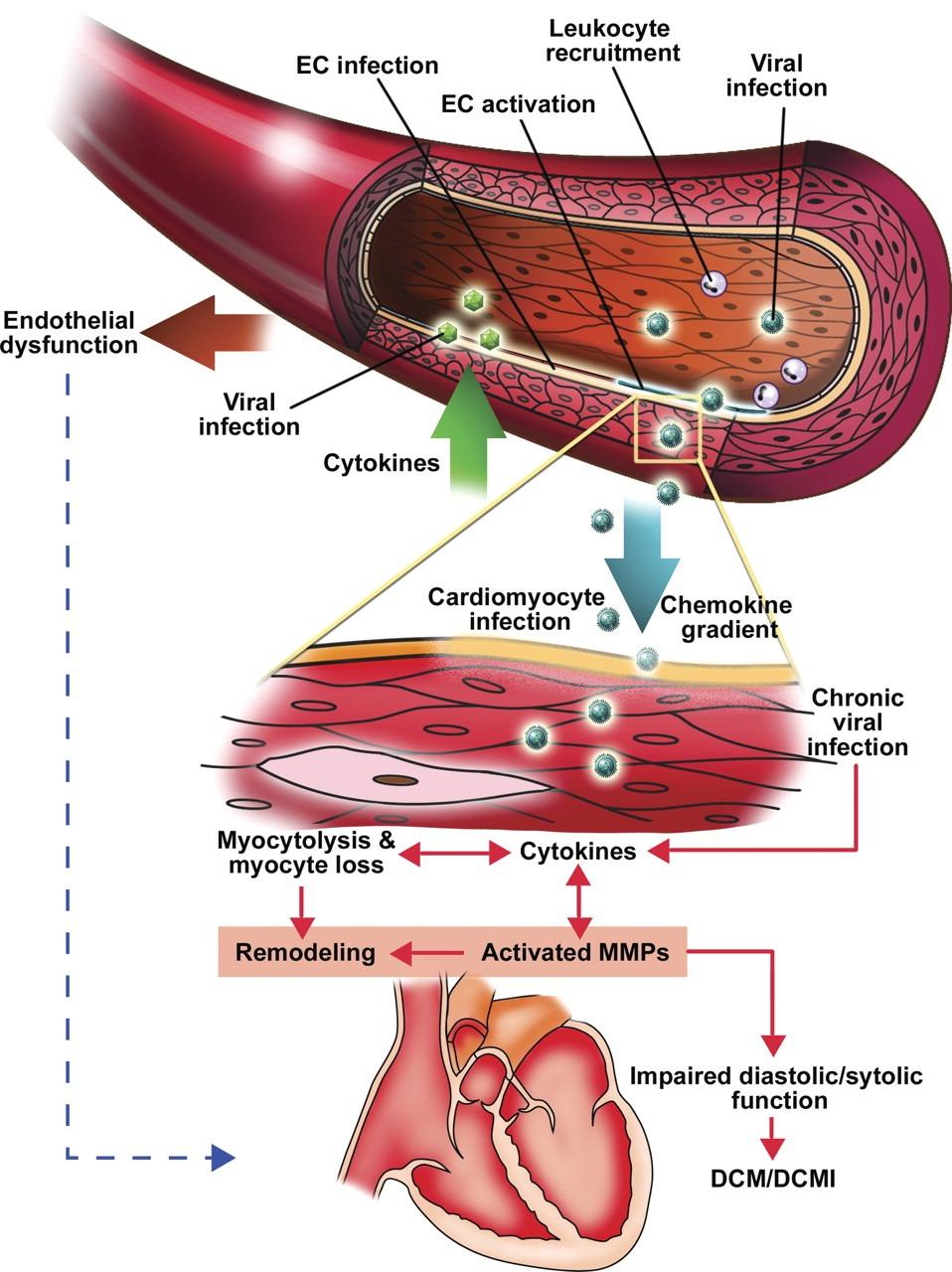Infezione virale del Cuore
