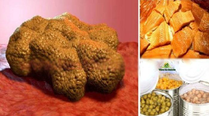 Alimenti che fanno crescere le cellule tumorali