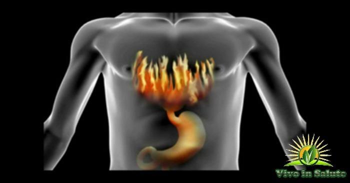 Bruciore-di-stomaco
