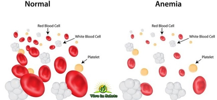 Combattere l'anemia