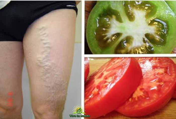 Vene varicose senza chirurgia