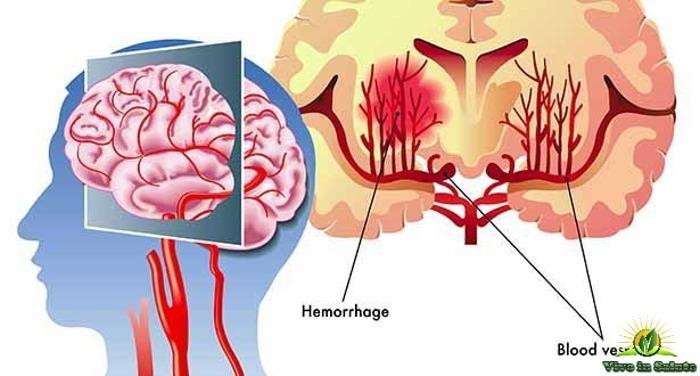 Emorragia al cervello o ictus