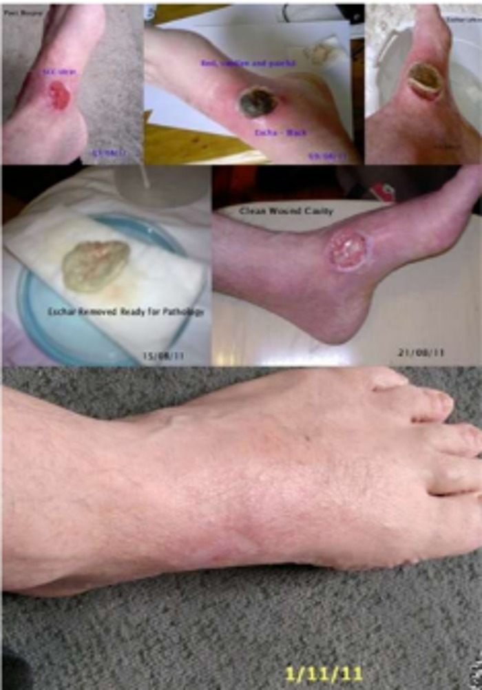 black-salve-guarigione-cancro