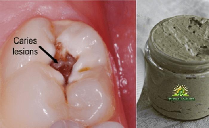 Dentifricio fai da te che sbianca i denti guarisce le carie e malattie gengivali