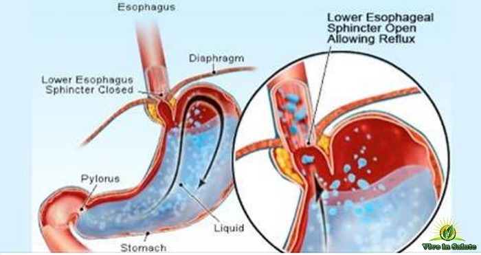 Reflusso gastroesofageo acido