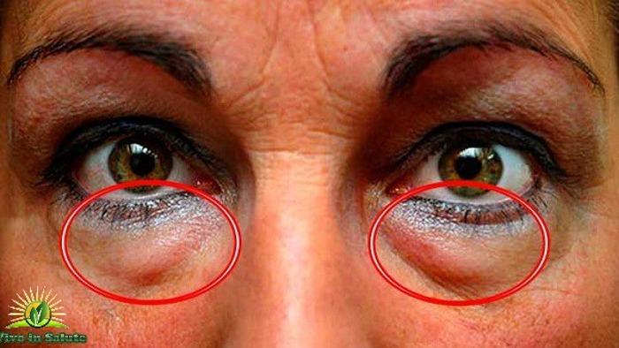 Rimuovere le occhiaie e le borse sotto gli occhi