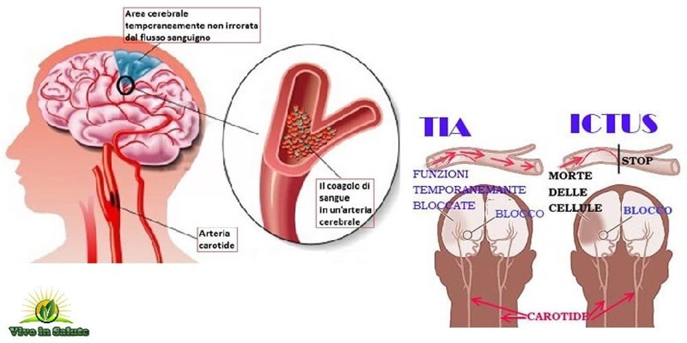 Sintomi premonitori di un ictus
